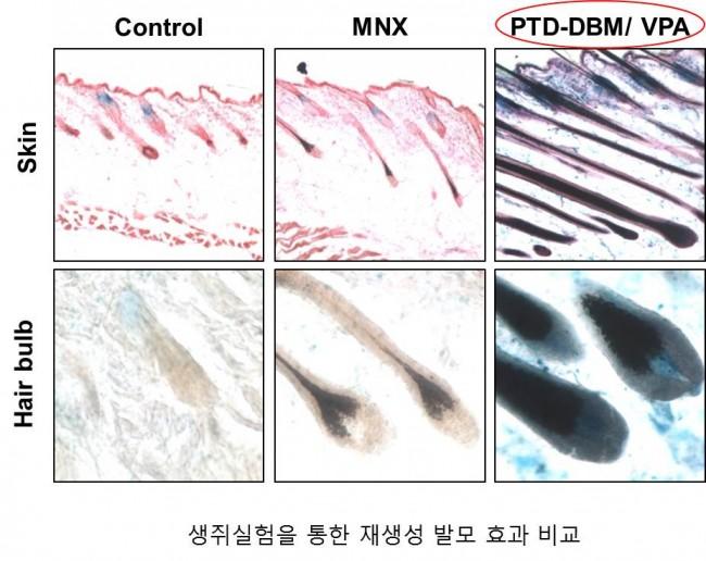 모낭의 회복. 맨 오른쪽의 새 물질 투입시 모낭의 회복이 확연하다. 탈모를 근본적으로 치료할 수 있을지 기대되는 이유다. - 최강열 제공